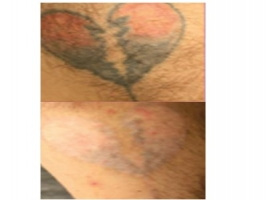 PiQo4 Laser Tattoo Removal - Los Angeles - Beverly Hills