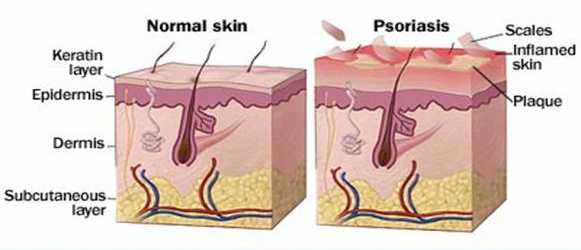 If You Have Psoriasis  Here U0026 39 S How To Treat It