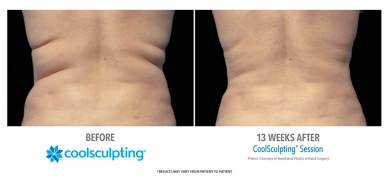 CoolSculpting Flanks
