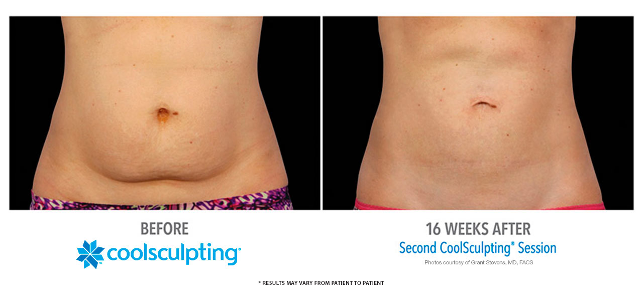 how to become certified in coolsculpting