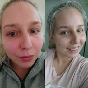 MySkincareCoach_transformation