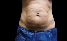 CoolSculpting Fat Reduction Team Manhattan Beach, CA