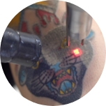 a close up of a tattoo being lasered off