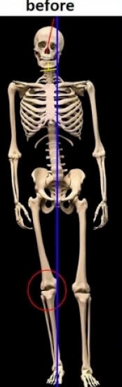 skeleton unbalanced